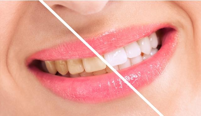 Безпечні методи відбілювання зубів - Жіночий Світ 241fdd2b425b0