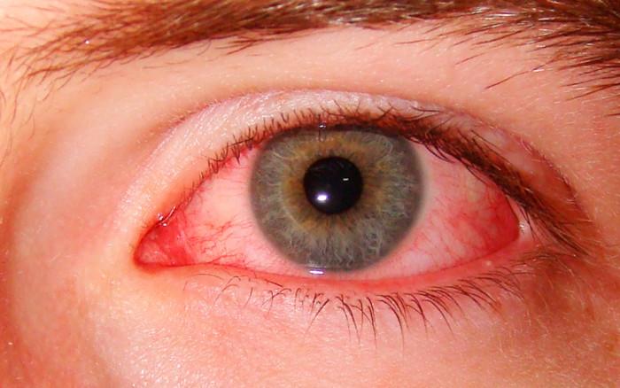 "Результат пошуку зображень за запитом ""почервоніння очей"""