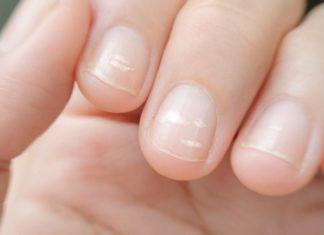 Стало відомо, на які небезпечні порушення можуть вказувати білі смужки на нігтях