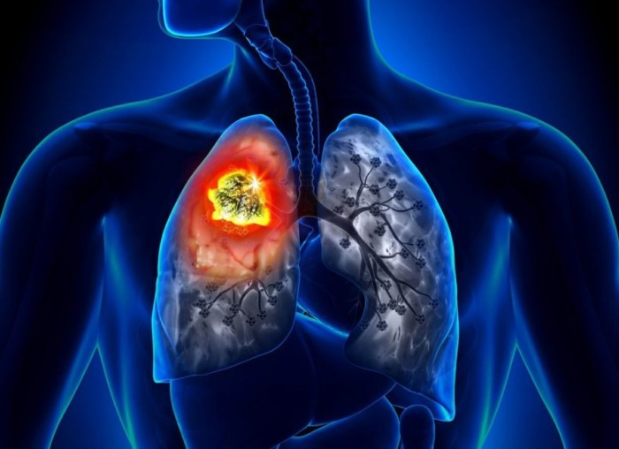 Медики пояснили, чому рак легенів може виникнути у некурящих людей