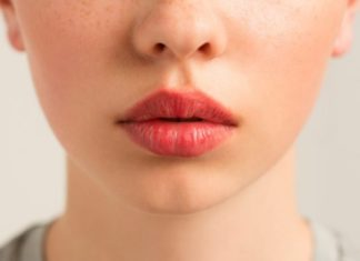 Про які проблеми зі здоров'ям говорить суха шкіра губ